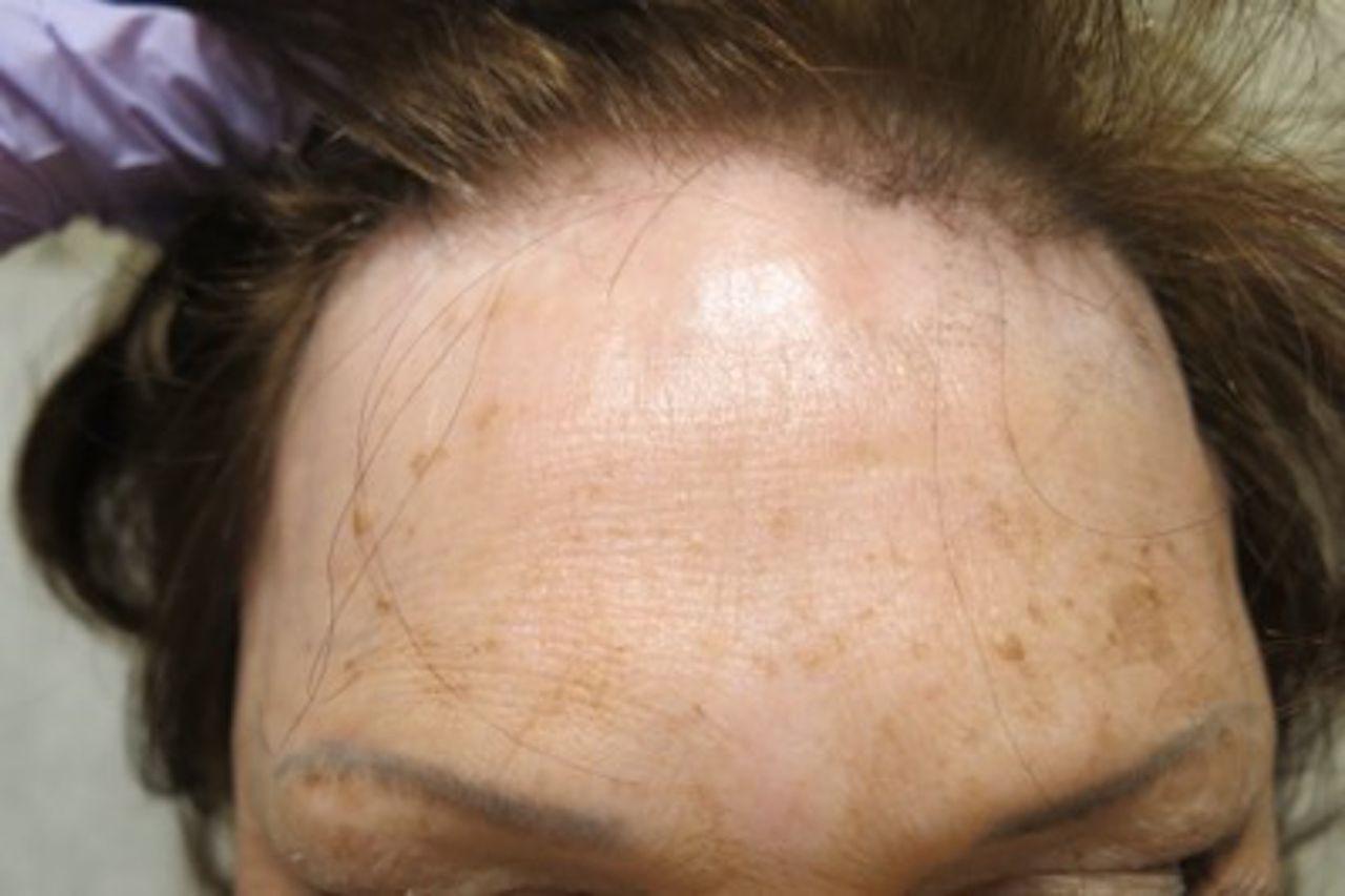 Alopecias In Lupus Erythematosus Lupus Science Amp Medicine