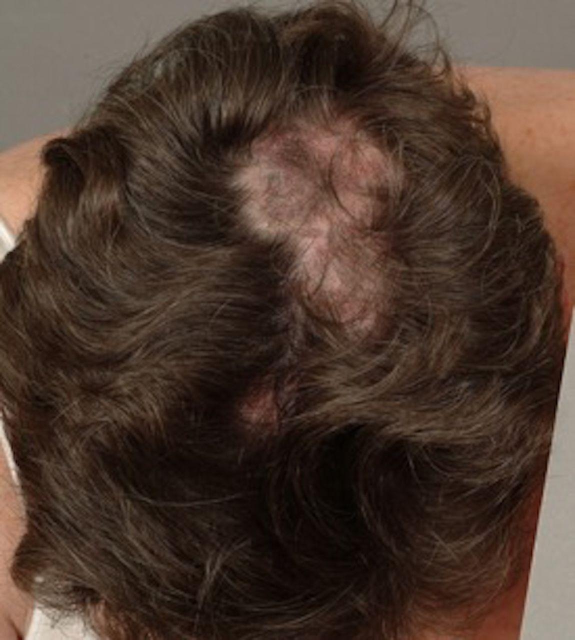Alopecias in lupus erythematosus | Lupus Science & Medicine